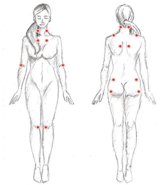 Fibromyalgie Druckpunkte
